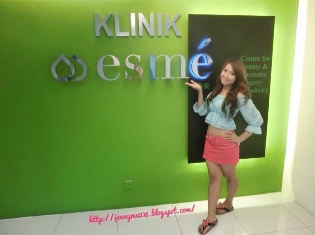 blogger-image--492467549